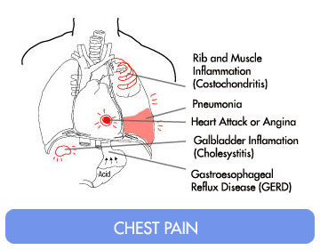 Causes of Chest Pains in Women