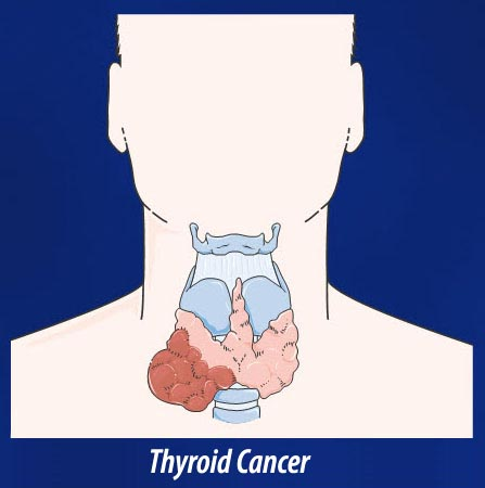 thyroid cancer How To Fix A Low Thyroid