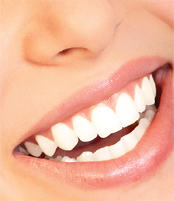 teeth-whitening-smile