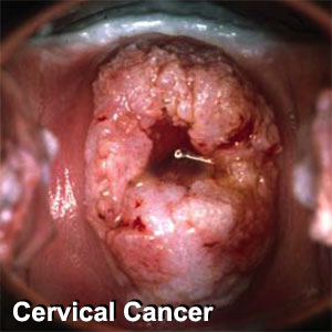 Cervical Cancer symp