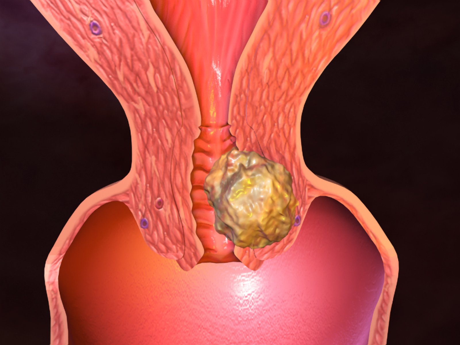 uterin cancer treatmnt