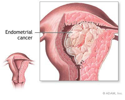uterine cancer jpg