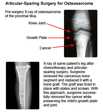 bone cancer diag jpg