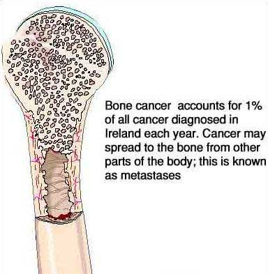 bone-cancer-syntoms1