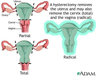 hysterectomy jpg