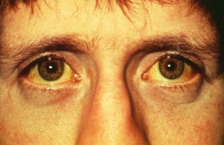 jaundice+eyes