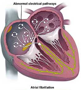 Atrial fibrillation can lead to other serious complications