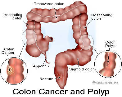 Colon Cancer And Its Causes Health Giants